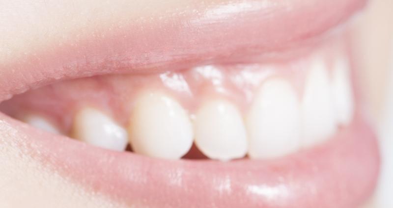 子供に発症。ヘルペス性歯肉口内炎とはどんな病気?歯茎に多発