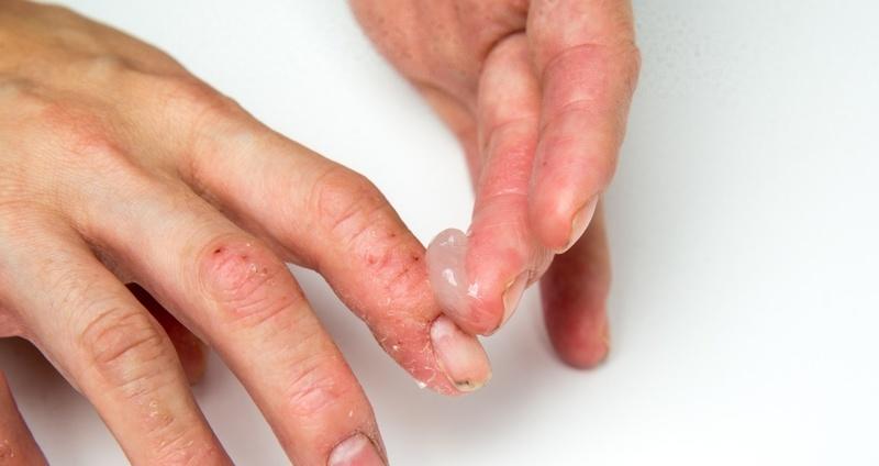 皮膚科外用薬を自分で塗布・貼付するとき何に気を