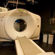 神経芽腫の治療ー手術・抗がん剤・放射線治療を組み合わせる