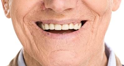 舌がんの初期症状と原因!,写真で解説