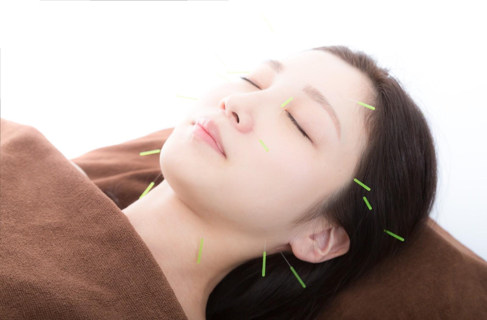 【初回or6カ月以上ご来店のない方】美容鍼灸コース