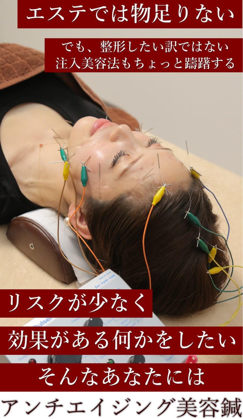 「初診」アンチエイジング美容鍼51本トライアルセット(3,740円お得)