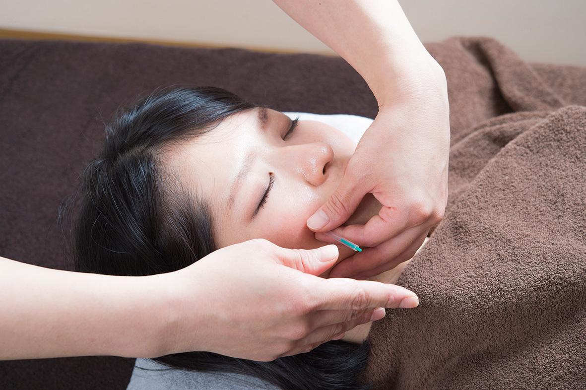 美容鍼灸40分(美顔鍼+手足の経絡鍼灸+自律神経調整)