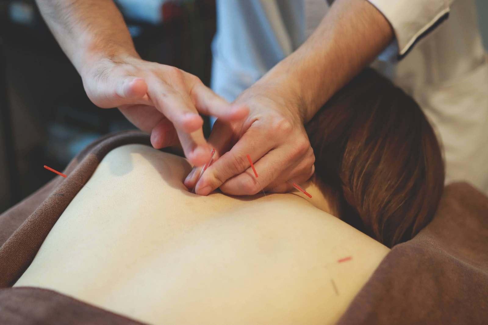 【初めての方】肩こりケア鍼灸コース