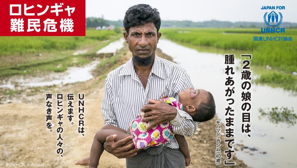 ロヒンギャ難民危機 「2歳の娘の目は、腫れあがったままです」モハマド・カシム(40歳)UNHCRは、伝えます。ロヒンギャの人々の、声なき声を。