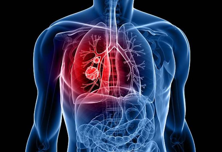 肺,癌,ピリチュアル,メッセージ