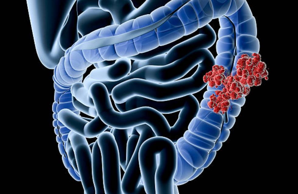 大腸がん,癌,ピリチュアル,メッセージ