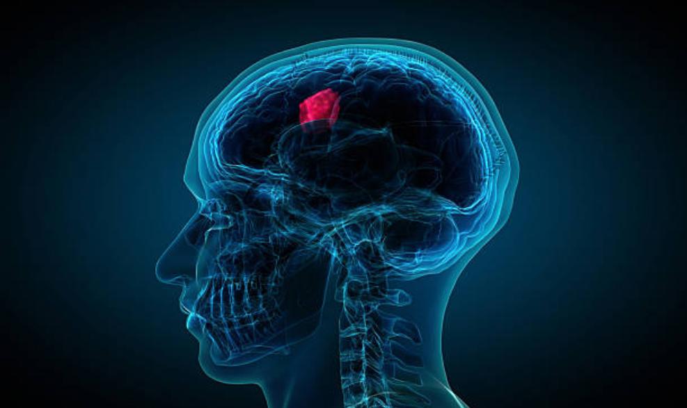 脳腫瘍,癌,ピリチュアル,メッセージ