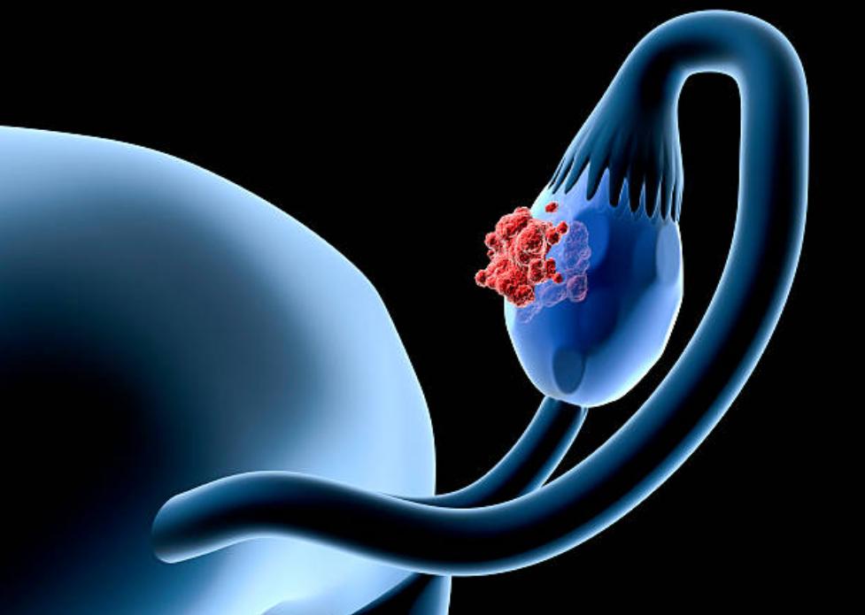 卵巣,癌,ピリチュアル,メッセージ