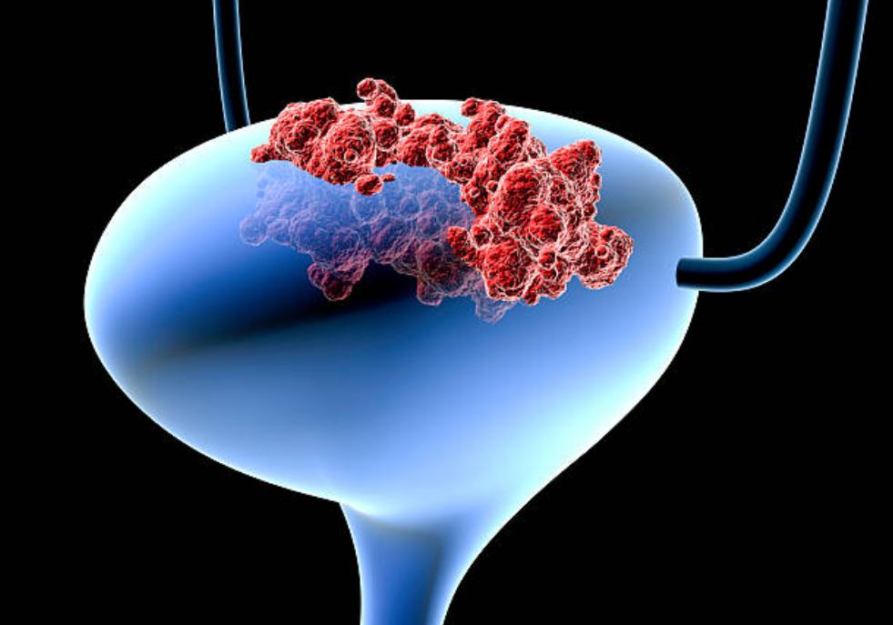 膀胱,癌,ピリチュアル,メッセージ