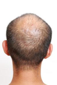 なぜ男性は女性とくらべて薄毛になりやすい?