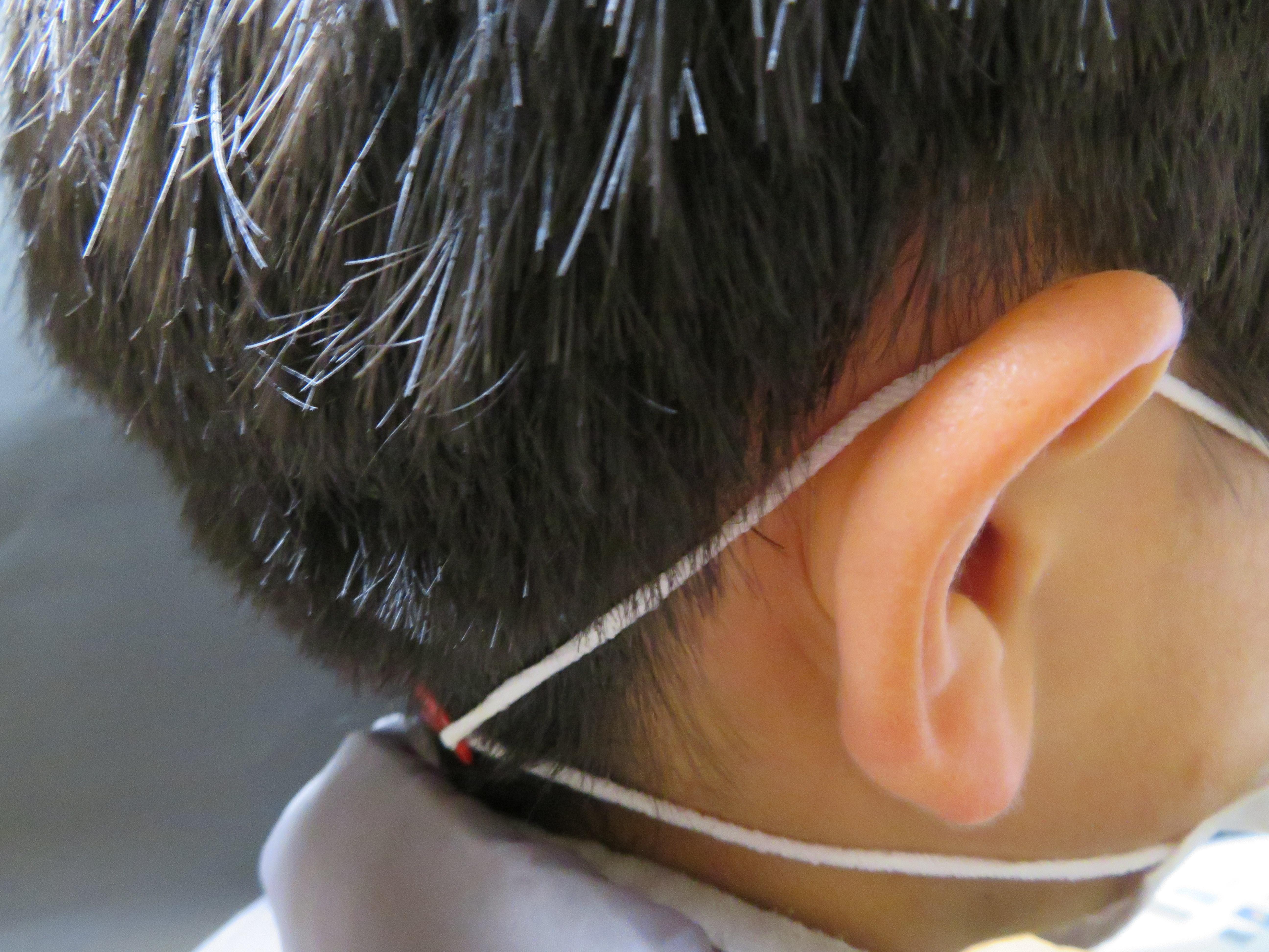 後ろ 痛い の 耳 が