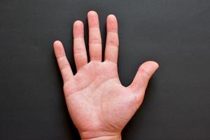 ますかけ線は強運の印?種類・手相の意味・右手と左手の違いをまとめて紹介