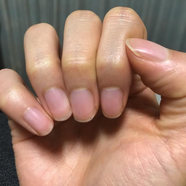 ハイポニキウムとは?伸びない人の特徴や爪の伸ばし方を紹介!