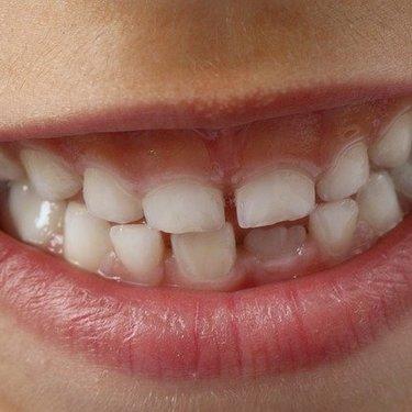 歯が欠ける夢の意味・心理とは?前歯・奥歯・虫歯によって違うのかリサーチ!