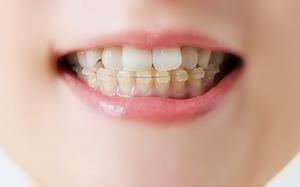 歯茎 滝沢カレン