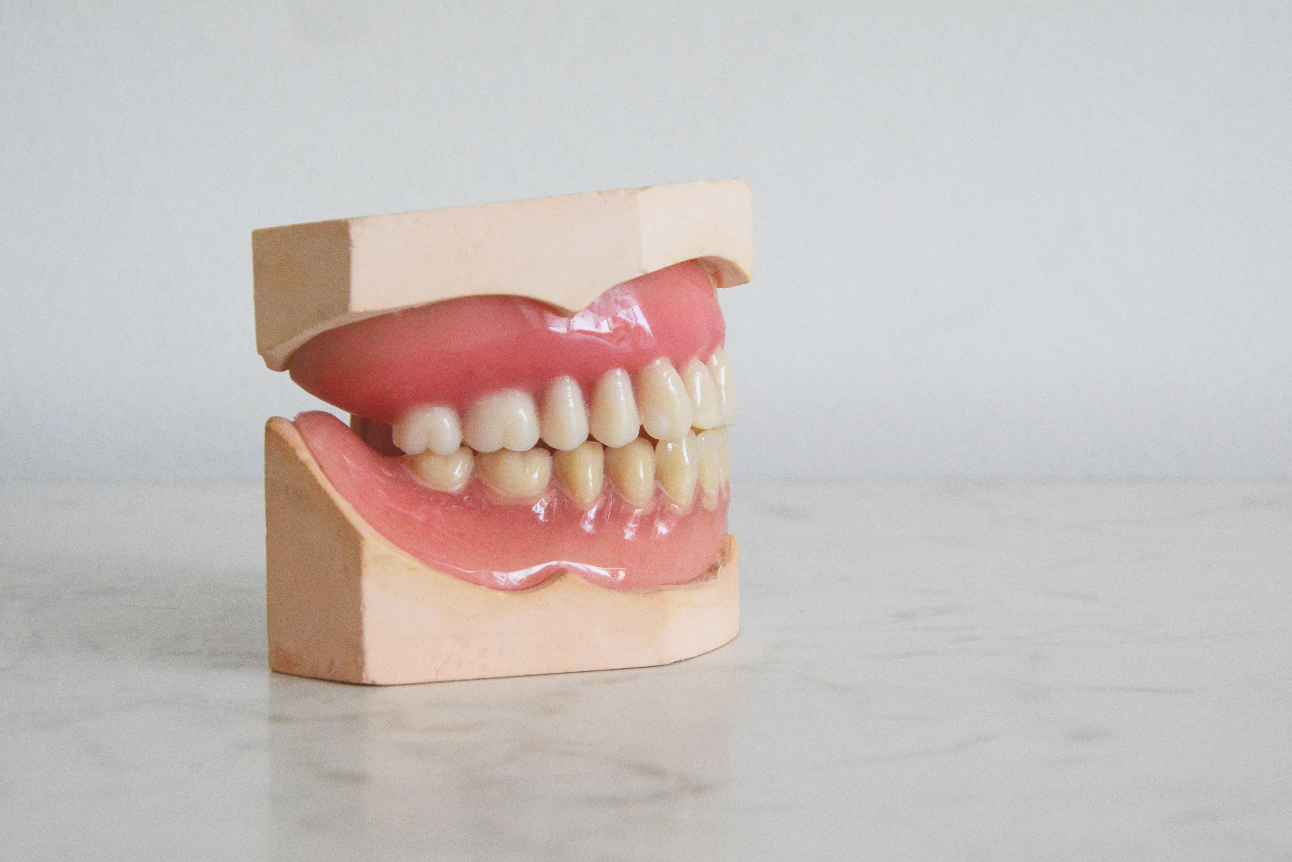 夢 差し歯 が 取れる