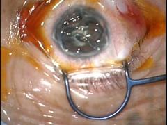 硝子体出血に対する27G硝子体手術