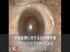 IFIS症例に対する白内障手術 アイリスリトラクターによる虹彩のdiamond configuration