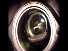 Implantation of the KeraKlear XT Artificial Cornea Using a Femtosecond Laser