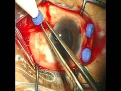 【27G vitrectomy】PDR(NVG、TLE後)