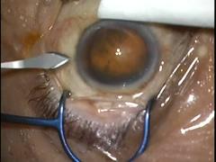 白内障手術(上方アプローチによる耳側切開)