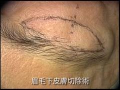 眉毛下皮膚切除術