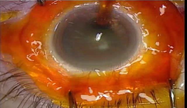 強角膜一面切開による白内障手術(CENTURION®)