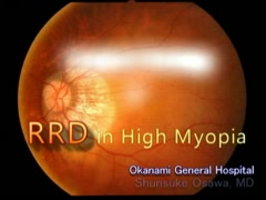 Surgical Strategy of RRD in High Myopia