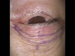炭酸ガスレーザーを用いた眼瞼下垂手術