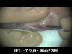 Baggy eyelidに対する、Hamra変法(眼窩隔膜のみ骨膜固定) [編集済・解説付]