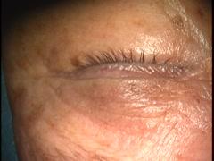 眼瞼前葉睫毛根除去法・台形切開