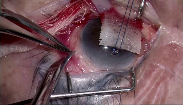 エクスプレスによる緑内障手術