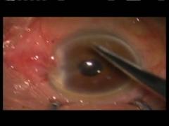 眼球運動障害を合併する再発翼状片