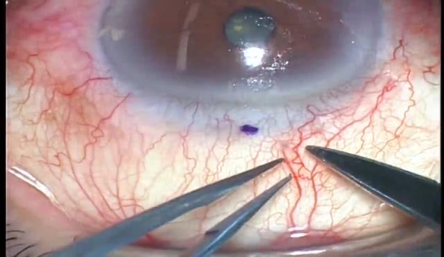 深層表層角膜移植+自己輪部移植+羊膜移植