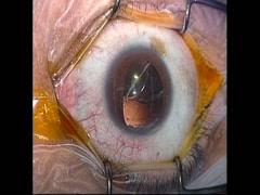 【27G vitrectomy】アクリルワンピースIOL脱臼例に対するIOL縫着
