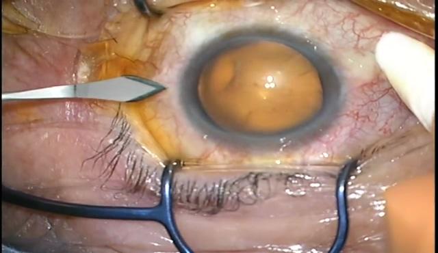 糖尿病網膜症に対する27G硝子体手術(ILM剥離)