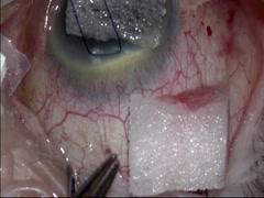 トラベクレクトミー 同一創からの白内障手術併用