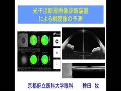 光干渉断層画像診断装置による網膜像の予測