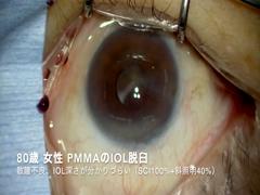 強度近視眼のPMMAのIOL摘出(L字切開、強膜内固定)
