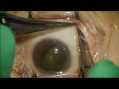 裂孔原発性網膜剥離 Case3