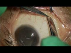 裂孔原発性網膜剥離 Case2