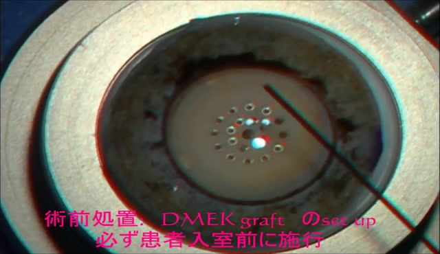 角膜浮腫が高度なLI後水疱性角膜症に対するDMEK