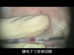 Baggy eyelidに対する、Hamra原法(眼窩膈膜及び眼窩脂肪の骨膜固定) [編集済・解説付]