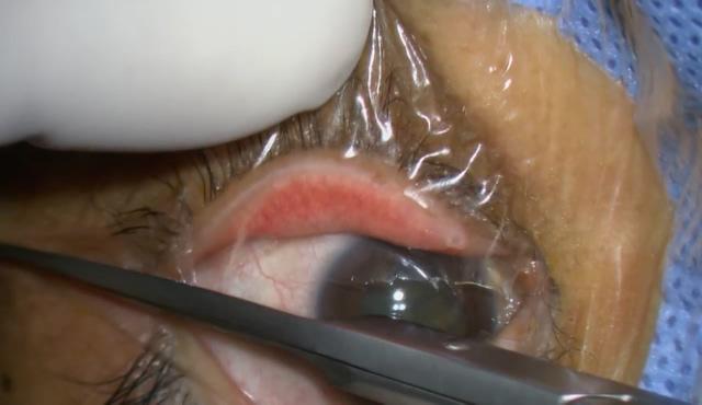 チン小帯脆弱例に対するCTR併用白内障手術