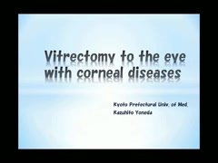 角膜疾患眼の硝子体手術 Vitrectomy to the eye with corneal diseases