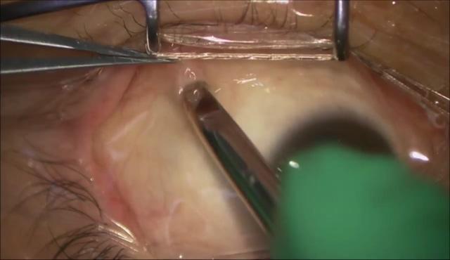 PVRに対する硝子体手術