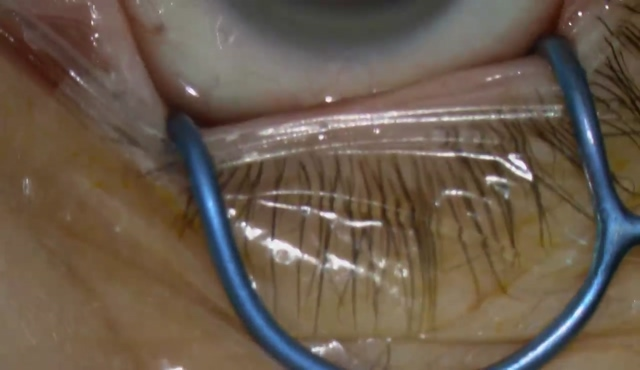 白内障手術(三焦点レンズ)