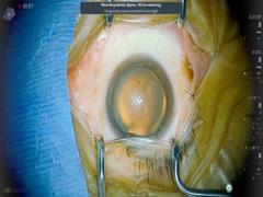 黄斑円孔(耳側ILM peel)