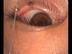 瞼縁の母斑の取り方2[編集済・解説付]